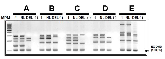 microdel Y - copia